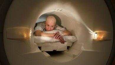 علاج جديد يعفي مرضى سرطان الدم من تلقي العلاج الكيميائي