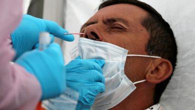 نُقل إلى مستشفى الحروق البليغة ببن عروس بعد إنفجار قارورة غاز بالمنزل فتبيّن أنّه مُصاب بالكورونا |